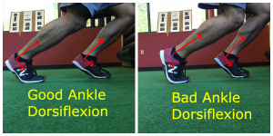 Sprinting - Cause of Lack of Ankle Dorsiflexion