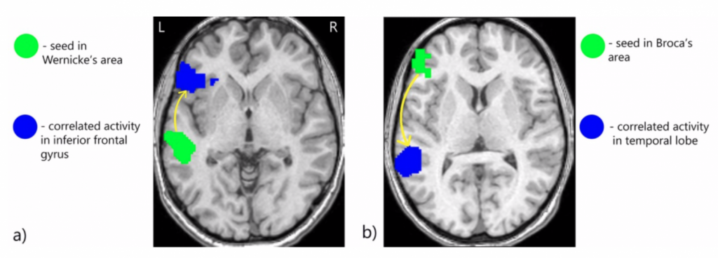 This is an image of a functional MRI scan of words being represented by the Broca's area and Wernicke's area, respectively.